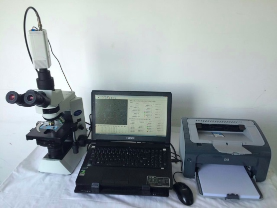 精液质量分析系统/精液分析