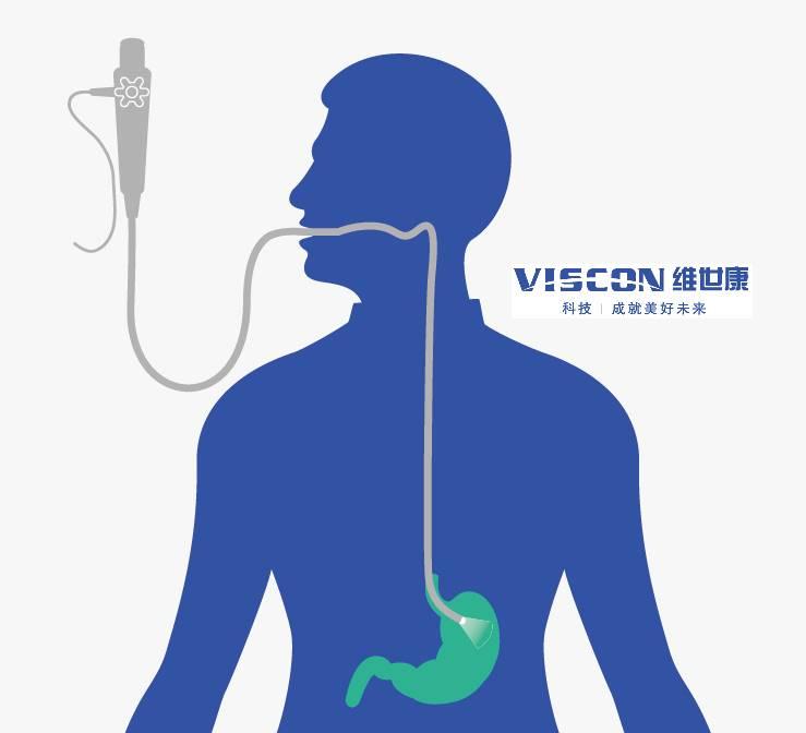 电子胃镜是什么