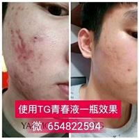TGTG药妆是什么,TGTG是什么品牌的护肤品,TGTG药妆护肤品多少钱